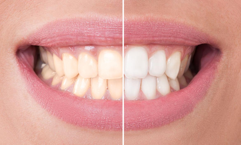TeethWhitening-2.jpg
