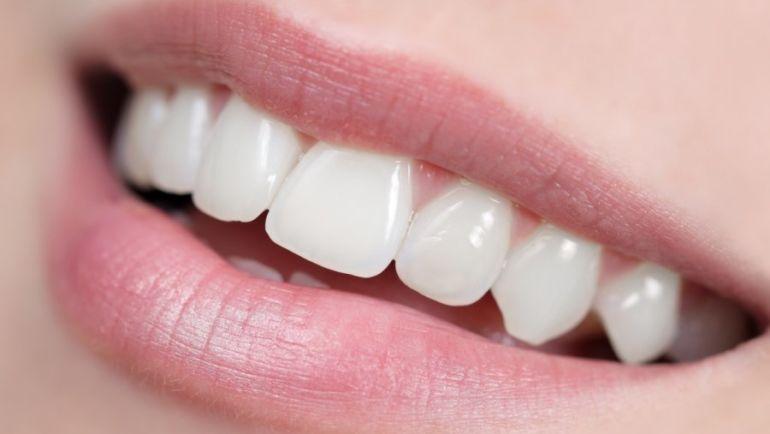 3 совета как укрепить эмаль зубов